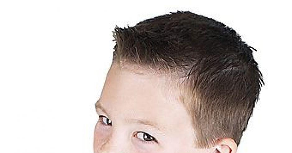 wypadanie włosów u cukrzyka