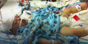 11-miesięczny Cameron po wypadku samochodowym