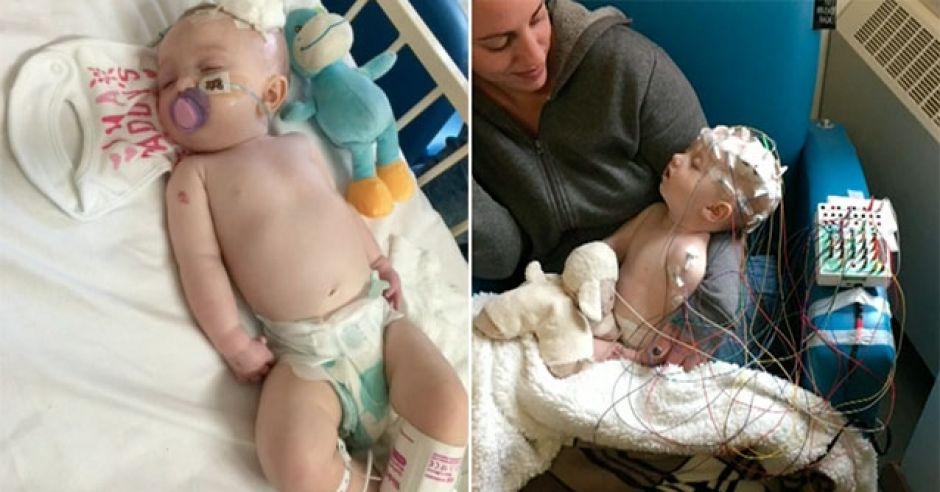 6-miesięczna dziewczynka została sparaliżowana po zarażeniu się wirusem opryszczki