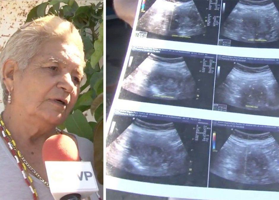 70-latka w ciąży