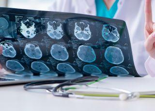 ADEM Ostre rozsiane zapalenie mózgu i rdzenia