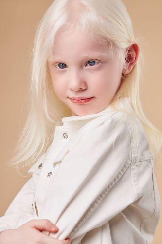 Albinizm, albinos