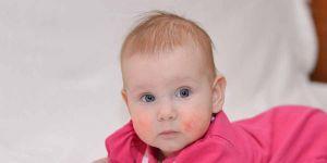 alergia pokarmowa u niemowlaka