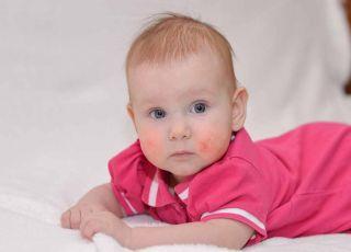 Alergiczne niemowlę: jak karmić i leczyć? Sprawdź!