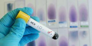 Badanie HCV w ciąży