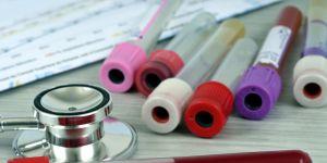 Badanie na oznaczenie grupy krwi