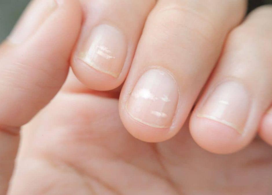 białe plamki na paznokciach u dziecka
