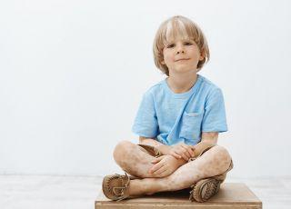 bielactwo u dzieci