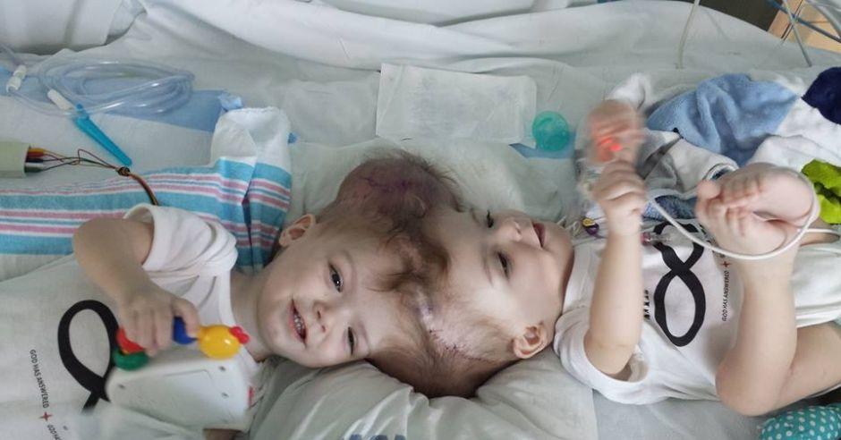Bliźnięta syjamskie, Jadon i Anias McDonald, przed operacją