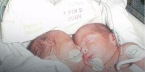 bliźnięta syjamskie zrośnięta brzuszkiem