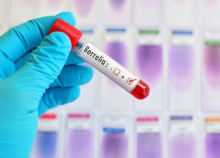 borelioza test z krwi