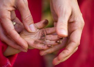 brudne ręce, choroba brudnych rąk