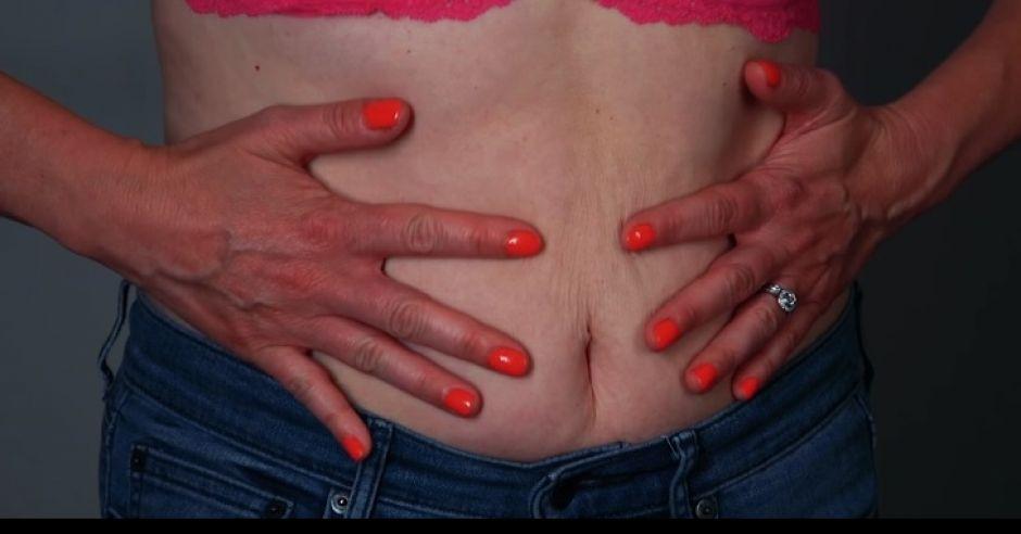 Brzuch kobiety po ciąży