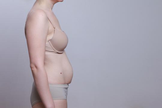 brzuch po ciąży jak wygląda