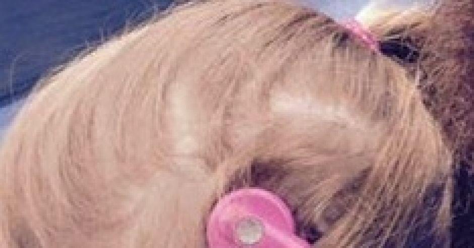 Charlotte i jej implant ślimakowy