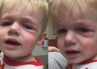 Chłopiec dostał wstrząsu anafilaktycznego po zjedzeniu w restauracji