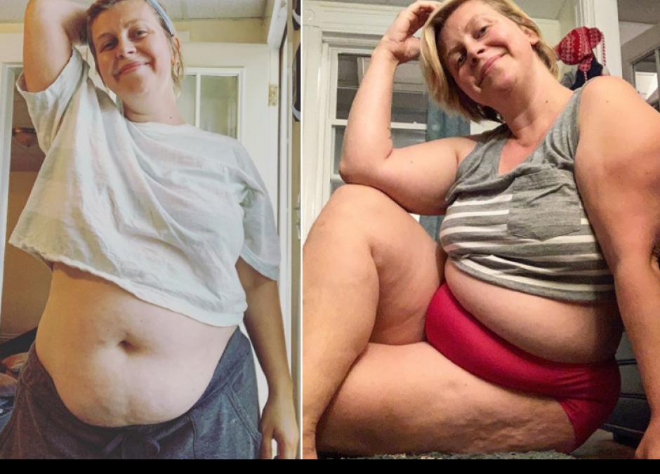 Ciało po porodzie zdjęcia