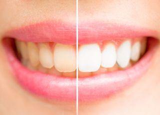 czy w ciąży można wybielać zęby