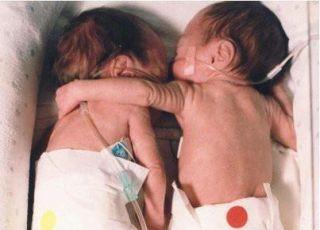 dzieci, bliźniaki, bliźnięta, wcześniaki, inkubator