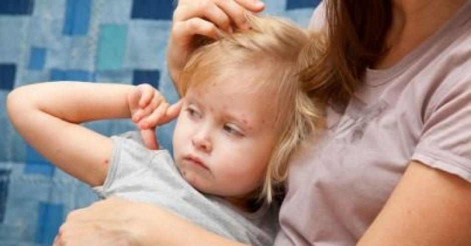 dziecko chore na półpasiec