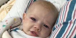 dziecko chore RSV