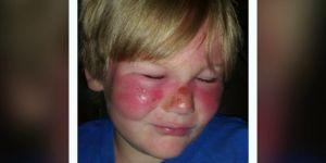 Dziecko poparzone od słońca mimo stosowania kremów z filtrem