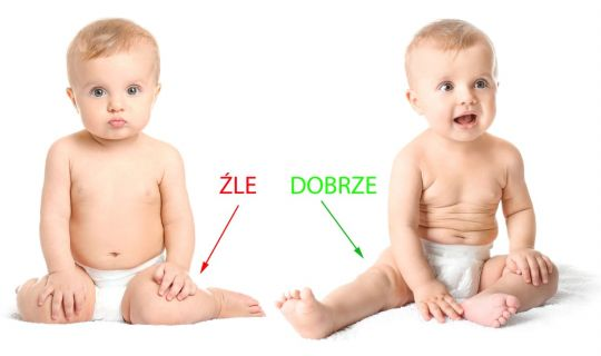dziecko siada w literę W – pozycja W i prawidłowa