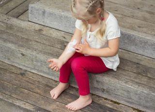 Dziecko smaruje rękę maścią - sposób na kurzajki