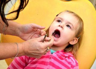 dziecko, zęby, dentysta, stomatolog, zęby mleczne, dziewczynka