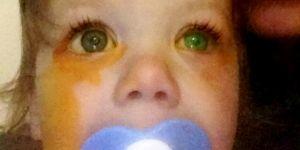 Dziewczynka mogła stracić wzrok przez wybuch kapsułki do prania