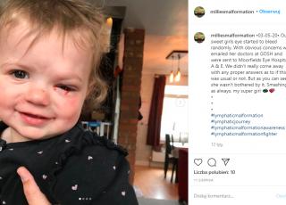 Dziewczynka płacząca krwią