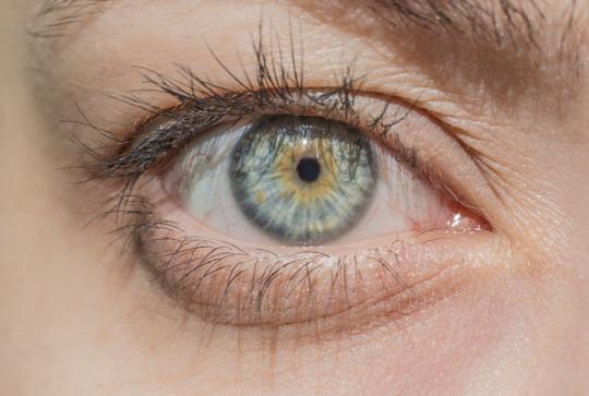 heterochromia centralna