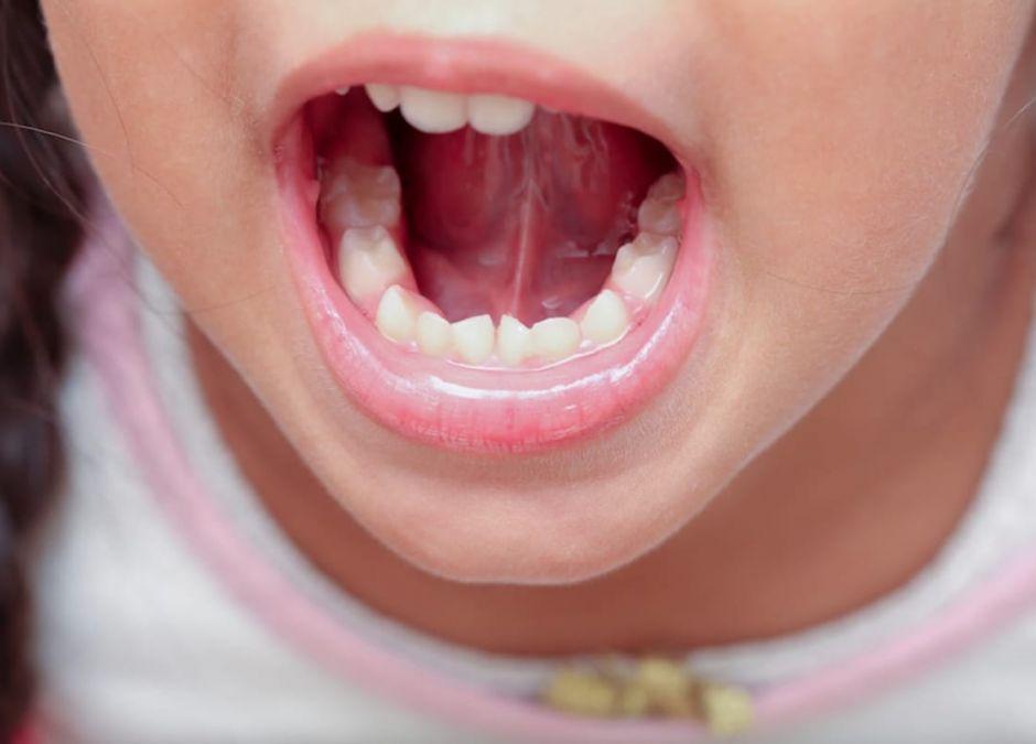 ile zębów mlecznych ma zdrowe dziecko