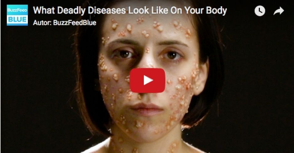 kadr z filmu What Deadly Diseases Look Like On Your Body