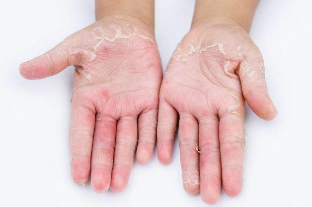 kontaktowa zapalenie skóry