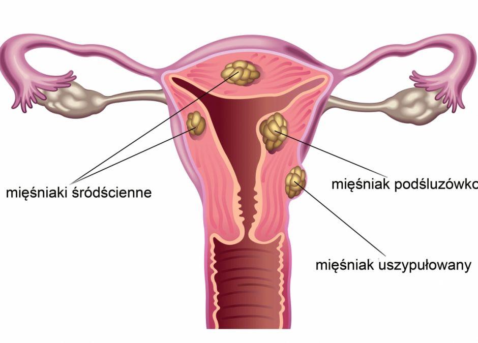 Macica, mięśniaki macicy, ból w pochwie, narządy płciowe kobiety