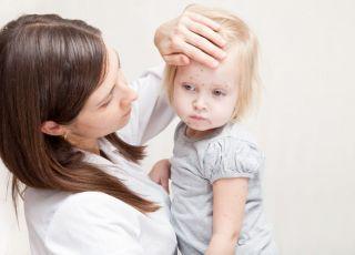 Mama i chora na ospę dziewczynka