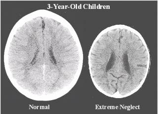 Mózgi dzieci normalnych i zaniedbanych