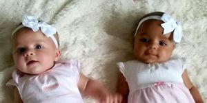 Myla i Anaya - bliźniaczki dwujajowe