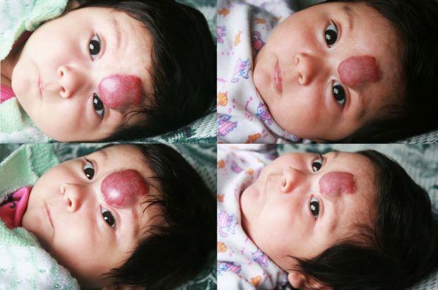 naczyniak na twarzy dziecka
