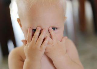 naczyniak u dziecka, naczyniak, skóra dziecka, zmiany na skórze, dermatolog