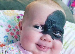 Rodzice odmówili usunięcia znamienia z twarzy córki