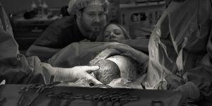 Niezwykła sesja zdjęciowa podczas porodu przez cesarskie cięcie