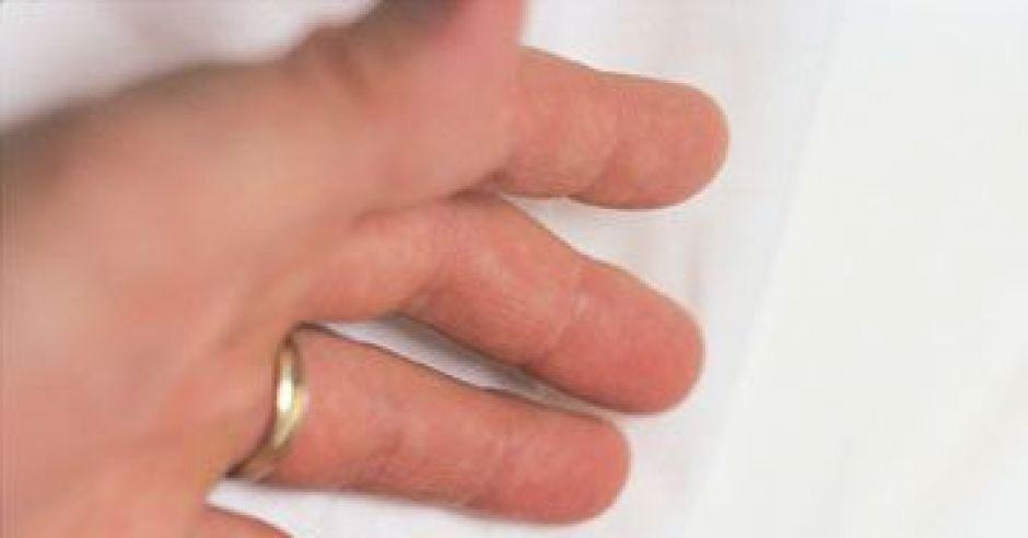 noworodek, dłoń