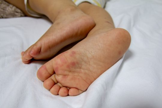 objawy koronawirusa na stopach dzieci
