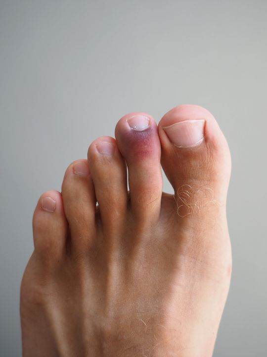 zmiany na stopach spowodowane koronawirusem zasinienie