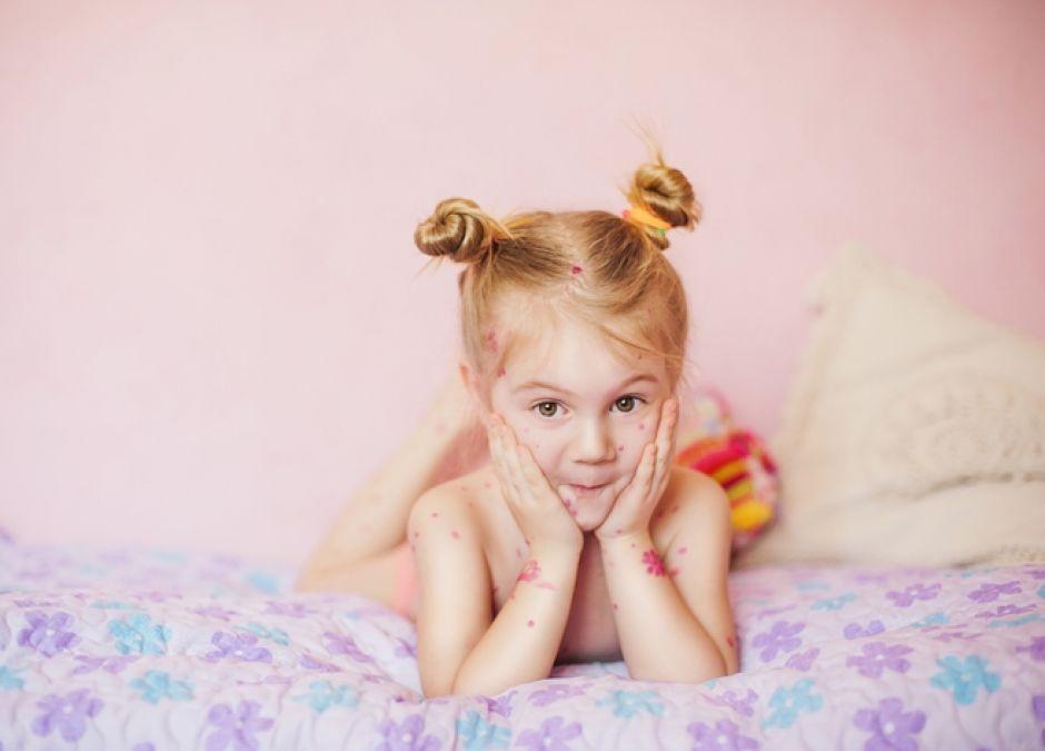 Objawy ospy u dziecka