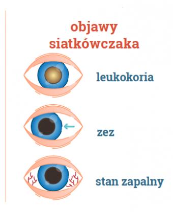 objawy siatkówczaka