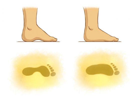 płaskostopie u dziecka – odcisk zdrowej i płaskiej stopy