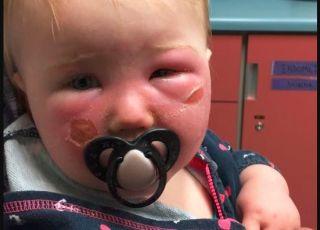 Oparzenie na twarzy dziecka